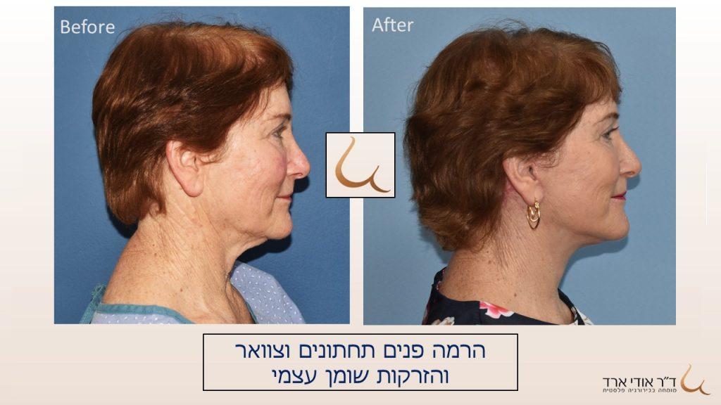 הרמת פנים וצוואר