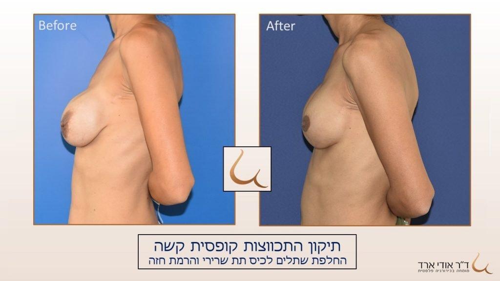ניתוחי חזה לאחר ניתוחים קודמים