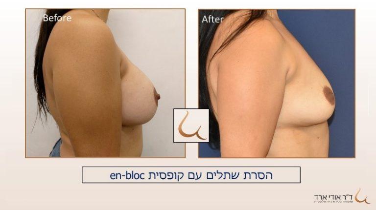 תמונות לפני ואחרי הסרת שתלים