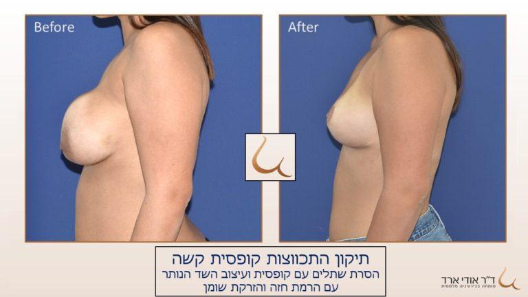 תוספת הזרקת שומן עצמי